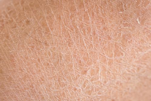 Auch trockene Haut kann Pickel verursachen.